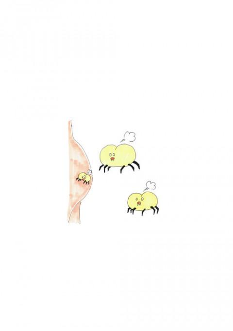 Hip Bug