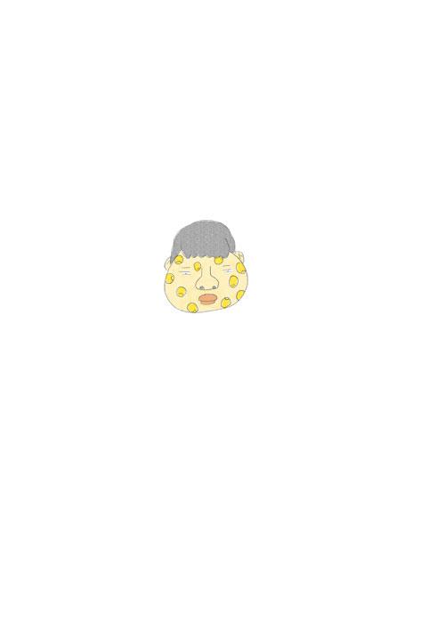 Corn Acne